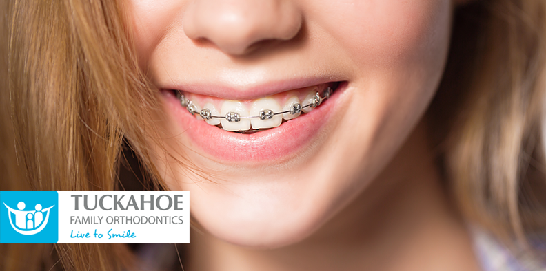 How Long Does Orthodontic Treatment Typically Last?