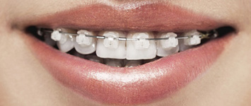 Adult Orthodontics: Clear Ceramic Braces