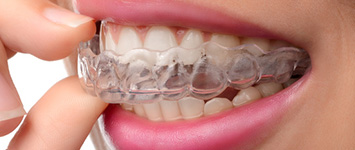Adult Orthodontics: Invisalign