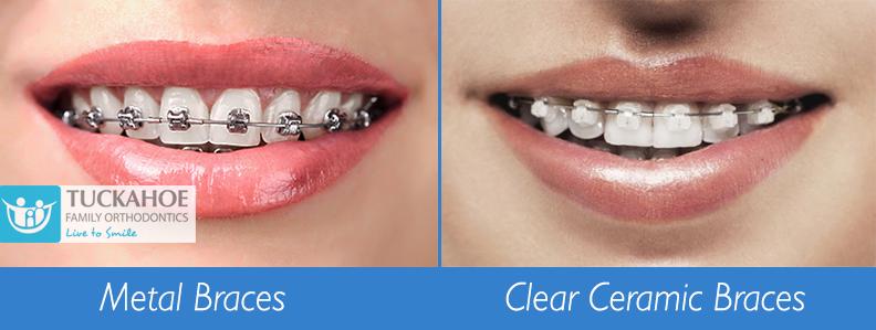 Metal braces vs clear ceramic braces