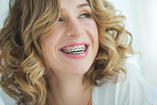 Traditional Metal Braces In Tuckahoe, Eastchester, Bronxville NY